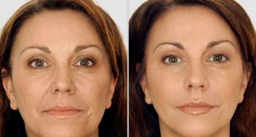 Botox Types